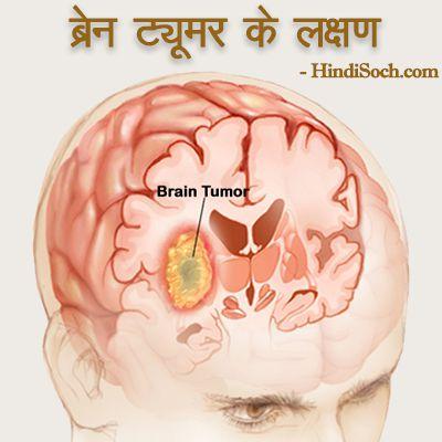 Brain Tumor Ke Lakshan