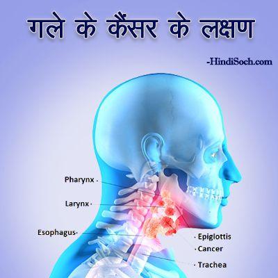 गले के कैंसर के लक्षण क्या हैं - Throat