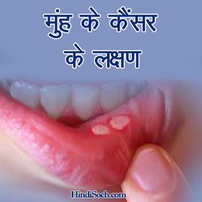 Photo of मुंह के कैंसर के लक्षण व कारण – Mouth Cancer Symptoms in Hindi